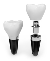 Cosmetic Dental Implant