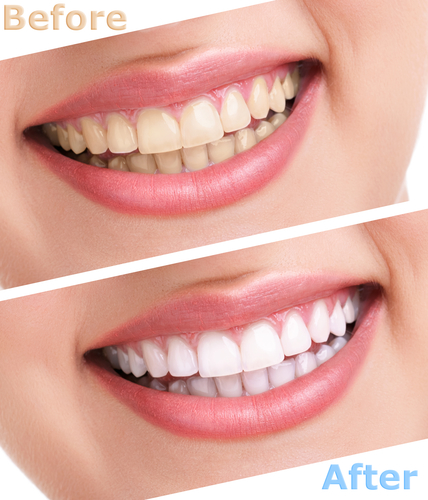 How much do lumineers cost in manhattan nyc an investment in cosmetic dentistry is an investment in your oral health both aesthetically and financially the cost of cerinate lumineers or any smile enhancement solutioingenieria Gallery