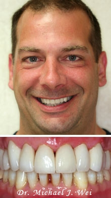 daniel after porcelain veneers