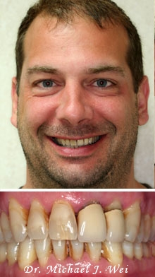 daniel before porcelain veneers