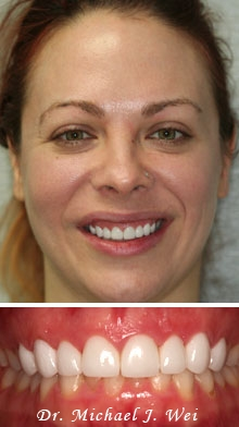 erica r after porcelain veneers
