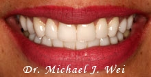 angela v after porcelain veneers