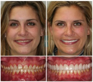 Porcelain Tooth Crowns Before & After Photos by Dr. Michael J Wei, DDS - Manhattan NYC Dentistr