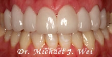 case 22 after porcelain veneers, tooth colored fillings