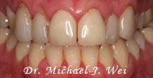 case 22 before porcelain veneers, tooth colored fillings