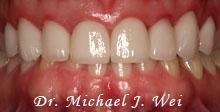case23-smile-afternew2