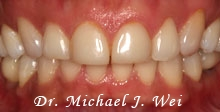 before porcelain veneers michelle c