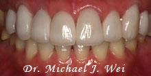miwa l after porcelain veneers, tooth crowns, tooth-colored fillings