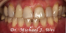 miwa l before porcelain veneers, tooth crowns, tooth-colored fillings