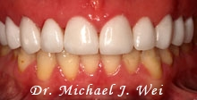 kathleen m after porcelain veneers