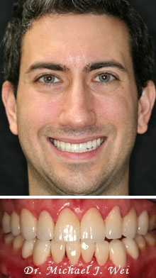 dan k after smile makeover