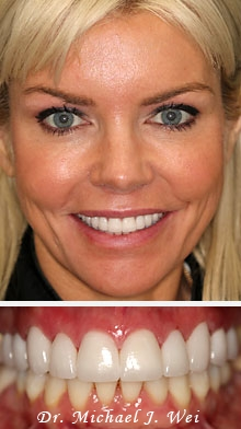 kerry after smile makeover