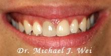 doloris smile before