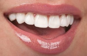 Durability of Porcelain Veneers