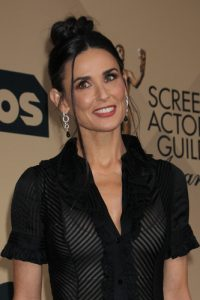 Demi Moore smile makeover