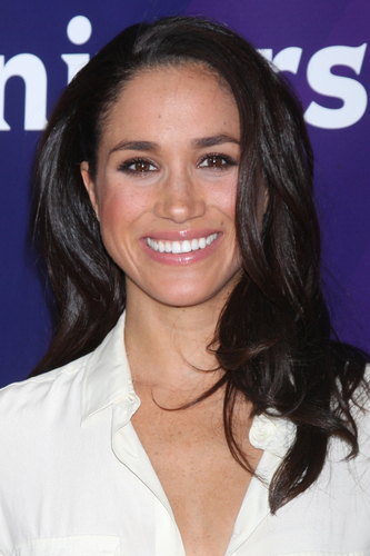 Meghan Markle teeth smile makeover