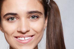 gapped teeth porcelain veneers instant smile makeover
