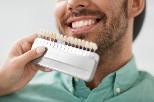 color of porcelain veneers manhattan cosmetic dentist