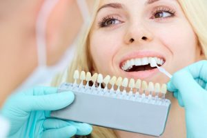problems porcelain veneers can fix midtown dr michael j wei