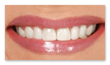 Cerinate One-hour Permanent Veneers