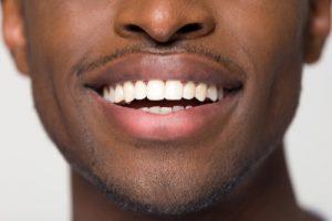 smile virtual consultation manhattan cosmetic dentist dr. michael j. wei