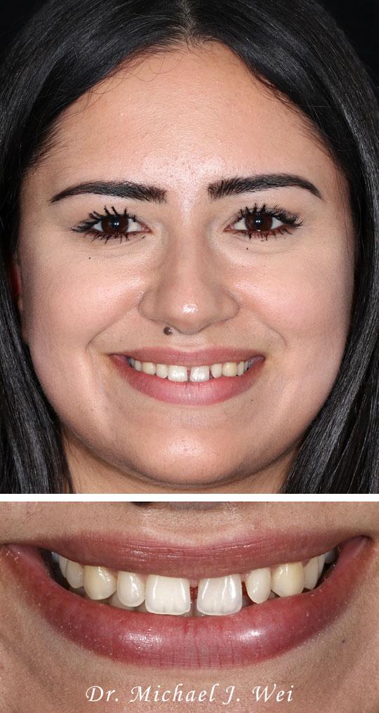 Gabriela S Before D