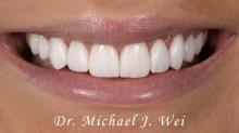 Gabrielle R Smile After 540x301