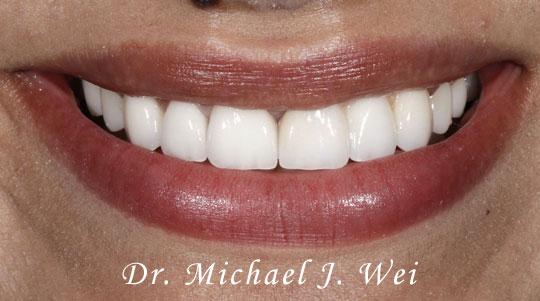 Gabriela S Smile After 540x301