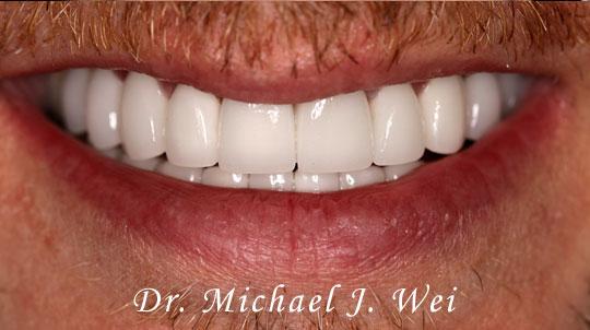 Bob C Smile After 540x302