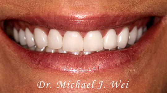 Lindsay L Smile After 540x301B