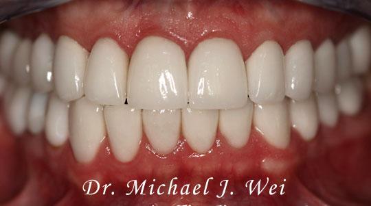 Naftali L Smile After 540x301