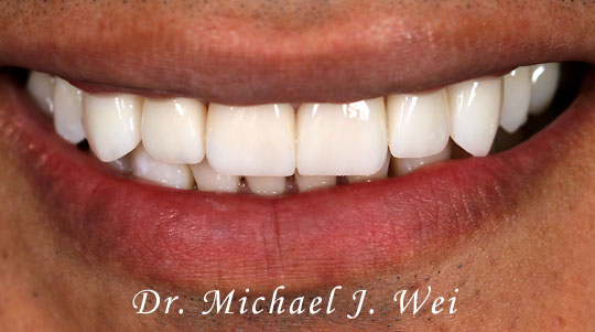 Omar S Smile After 540x301
