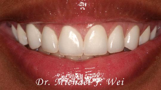 Sharonda P Smile After 540x301