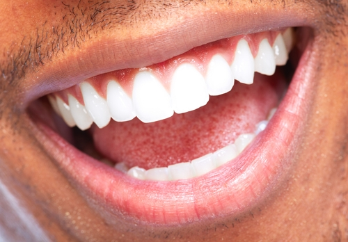 tooth stains cosmetic dentist dr michael j wei nyc