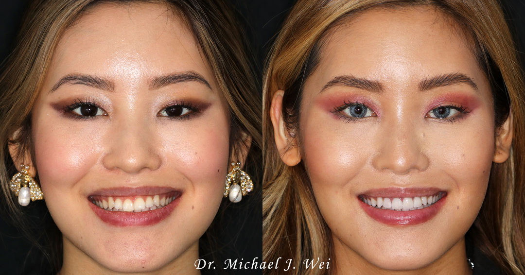 Jarry L Before/After Veneers