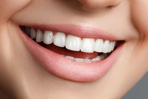 laser gum recontouring porcelain veneers dr wei nyc dentist