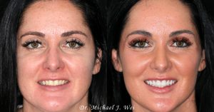 Deborah C Before and After Smile Makeover