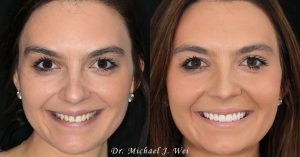 Gabrielle R Before and After Smile Makeover