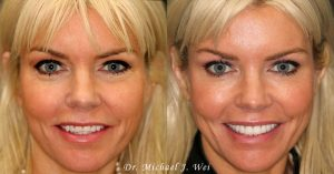 Kerry W Face Before and After Smile Makeover