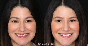 Vanessa W Before and After Makeover