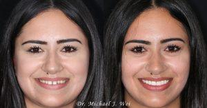 Gabriela S Before/After Veneers